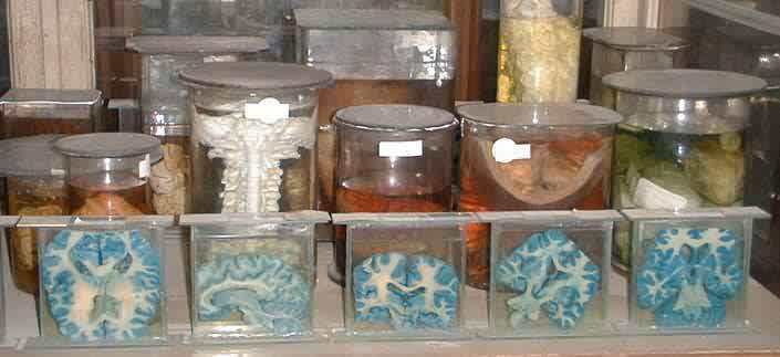 The Anatomical Pathological Collections At The Semmelweis Medical